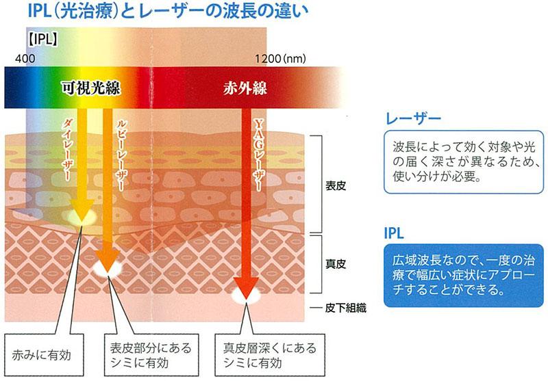 レーザー治療と光治療(IPL)との違いとは